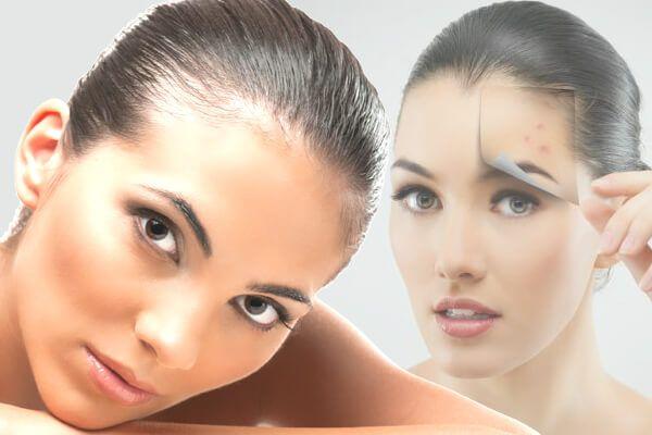 Конопено олио за превенция на проблемна кожа